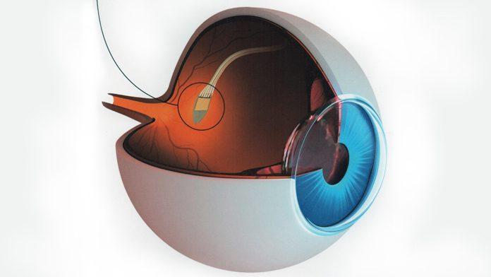 visione-bionica-696x392.jpg